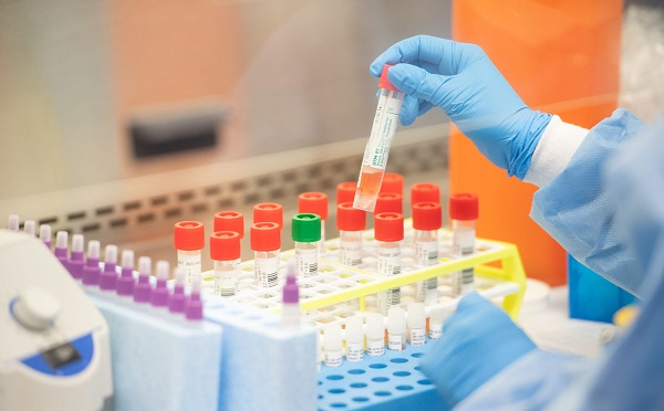 In Sachkere a man retests positive for coronavirus after initial recovery